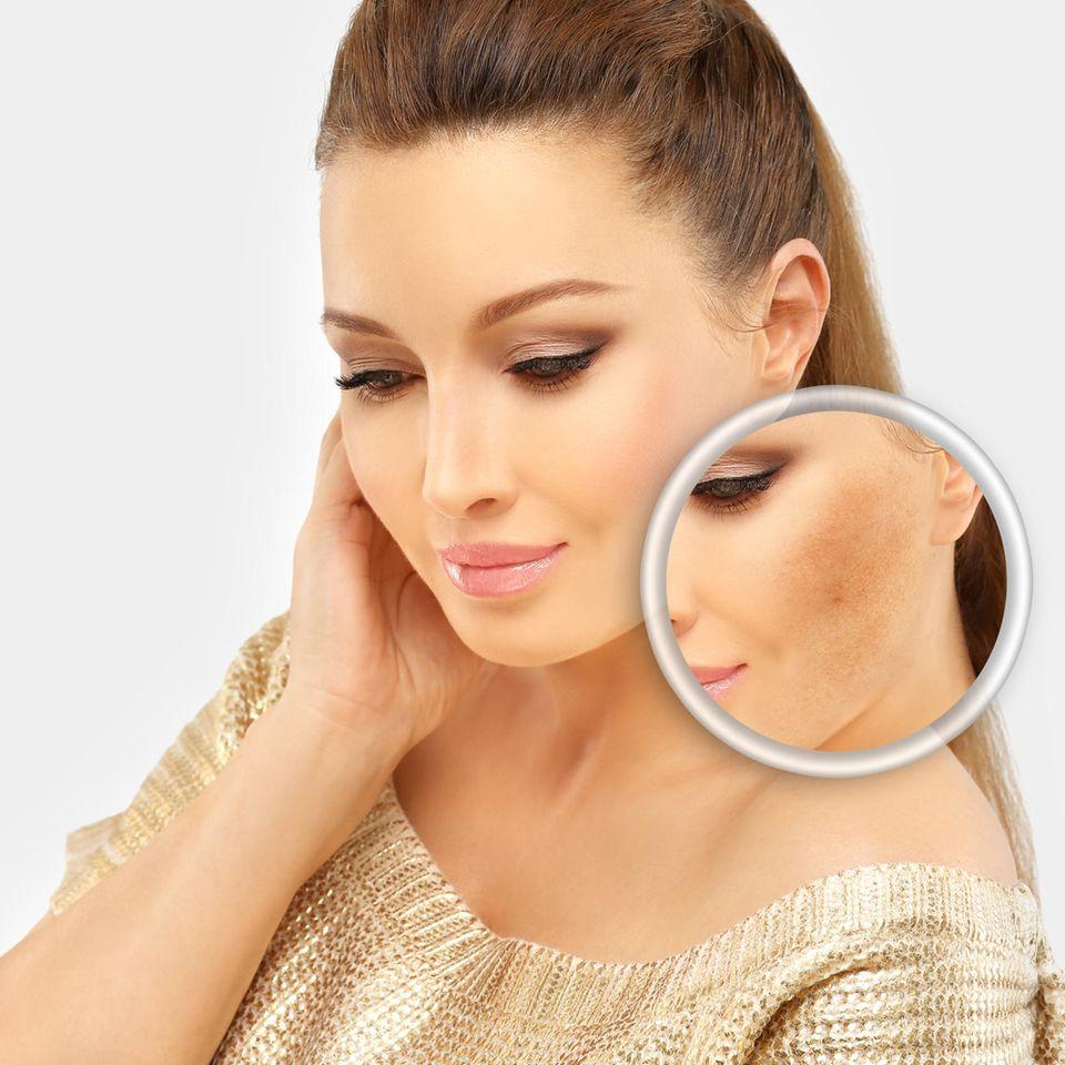 Altersflecken lassen sich mit verschiedenen Methoden und Hausmitteln entfernen.