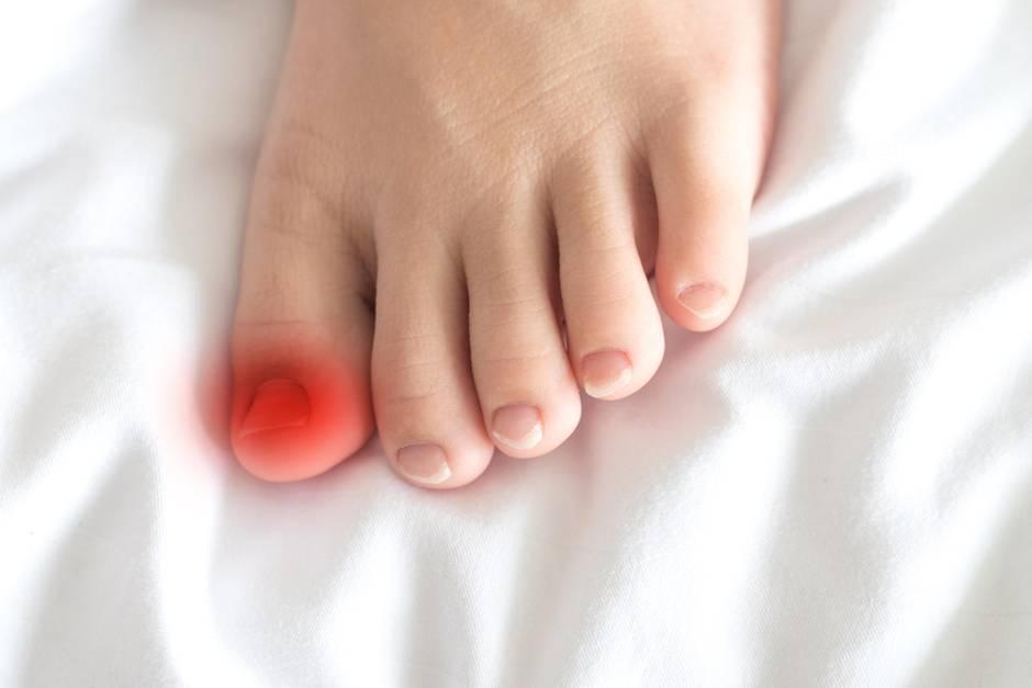 Ein Eingewachsener Zehennagel ist in den meisten Fällen sehr schmerzhaft.