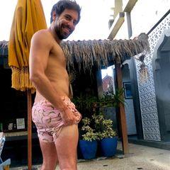 Max Giesinger mit Sonnenbrand an den Beinen