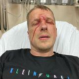 Oliver Pocher liegt mit einer Platzwunde im Krankenhaus