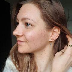 """... vor allem auch ermutigende Worte. Denn für Hanna ist unreine Haut kein Tabu-Thema. Als """"Skin""""-fluencer folgen ihr rund 24.000 Fans auf dem mitunter beschwerlichen Weg, ihre Akne in den Griff zu bekommen."""