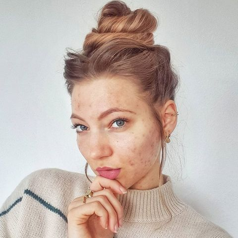 Unreine Haut im Gesicht: Hanna Bohnekamp zeigt ihre Akne.
