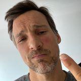 9. Juni 2020  Autsch, das hat wehgetan, vielleicht hilft da etwas Eis zur Kühlung? Florian David Fitz schaut bekümmert. Eine Wespe hat sich unter seine Brille verirrt und vor lauter Panik zugestochen.
