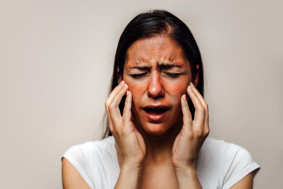 Hautausschlag im Gesicht: Frau hat schmerzenden Hautausschlag.