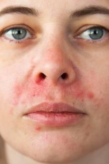 Periorale Dermatitis Schwangerschaft