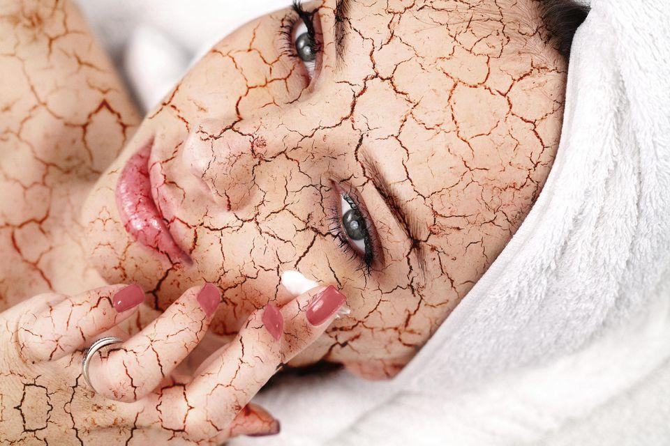 Hautbild verbessern: Frau trägt Creme auf ihre sehr trockene Haut auf.