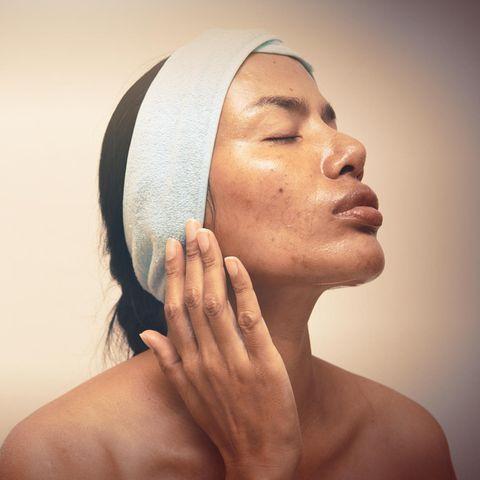 Fettige Haut: Frau zeigt ihre ölige Gesichtshaut.