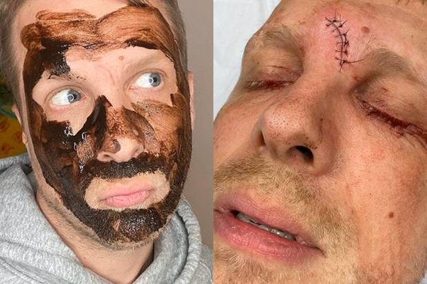 Oliver Pocher : Botox lässt seine Stirnnarbe fast verschwinden