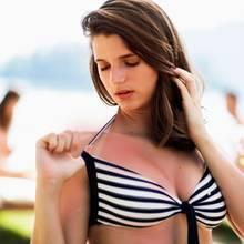Frau im Bikini schaut auf Sonnenbrand auf den Schultern