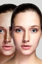 Vergleich einer brünetten Frau vor und nach der Behandlung von Pigmentstörung im Gesicht
