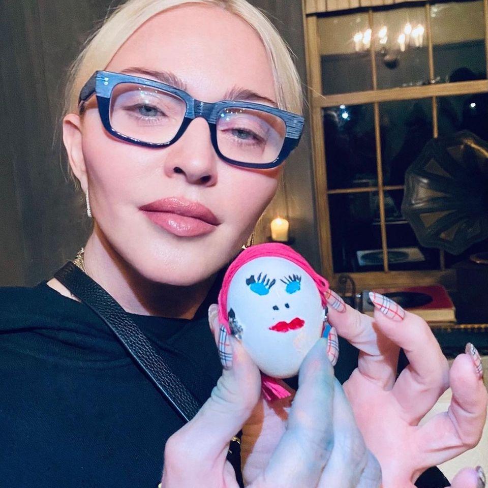"""... ist alles andere als natürlich: Die gestrafften Wangen lassen Madonnas Gesicht katzenartig wirken und auch sonst wirkt sie ganz schön aufgepolstert und maskenhaft. Wir hätten die """"Queen of Pop"""" kaum wiedererkannt! Aktuell arbeitet die Sängerin an einem Film über ihr Leben – vielleicht erkennt sie beim Durchforsten alter Aufnahmen ja, dass sie auch ohne Botox und Co. die Welt begeistern kann."""