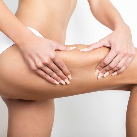 Frau kneift in den Oberschenkel und zeigt Cellulite