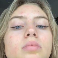 """Was für ein ehrliches Foto! In ihrer Instagram Story postet Leni Klum einen ungeschönten Blick auf ihre Haut und schreibt: """"Schlechte Haut. Auch dies wird vorübergehen."""" Super authentisch, denn jeder hat irgendwann mal Hautprobleme – auch Models. Aber ob Mama Heidi das so gut finden wird?"""