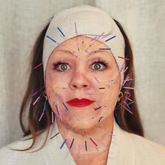 Melissa McCarthy hat Akupunkturnadeln im Gesicht