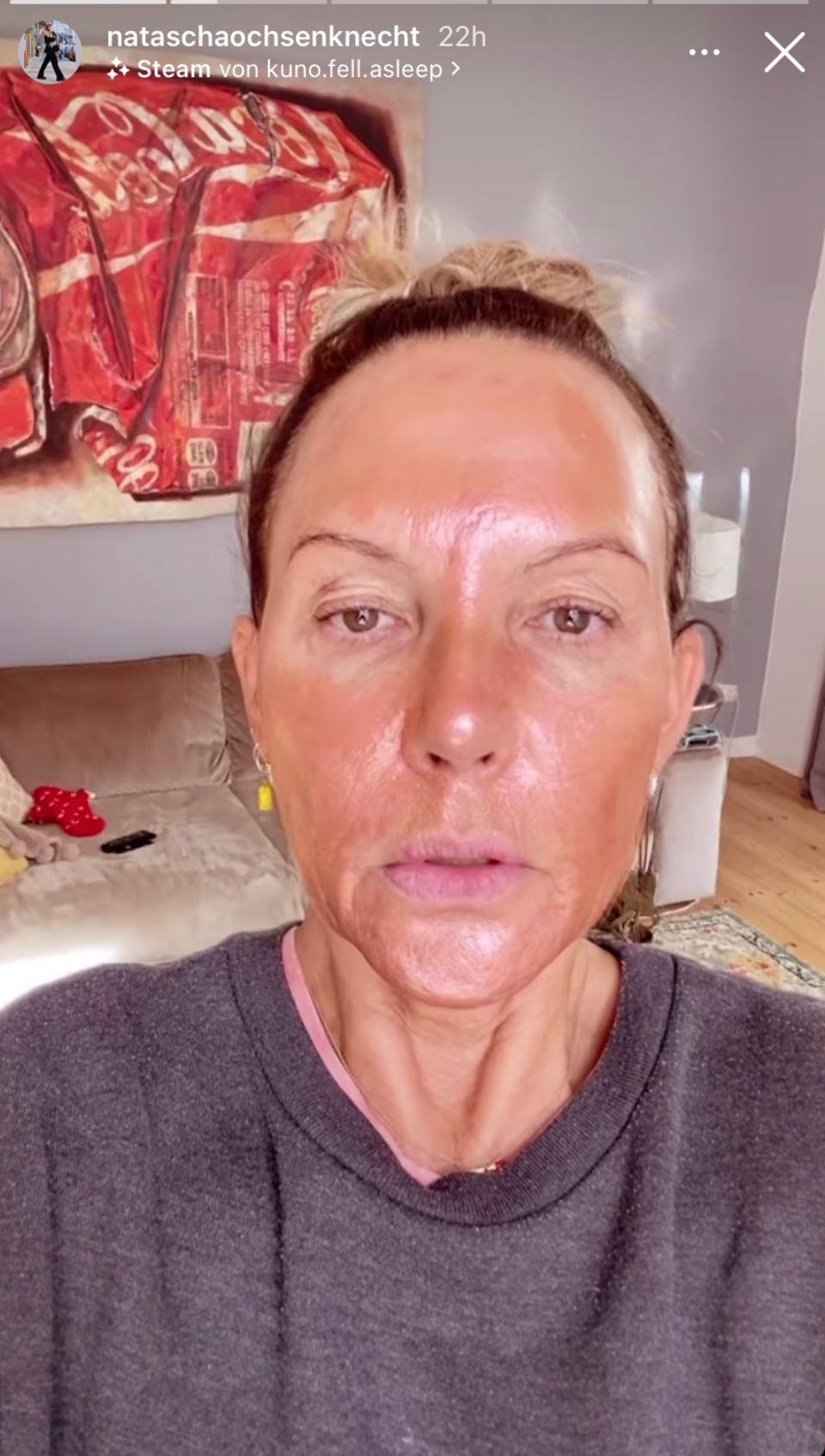 Gerötetes Gesicht und überstraffe Haut: Natascha Ochsenknecht erkennt sich selbst kaum wieder.
